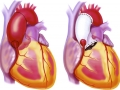 Chapter 3; 3.5. Aortic root replacement
