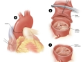 Chapter 4; 4.3 Aortic stenosis