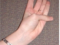 Chapter 8; 8.6 Thumb-palm sign